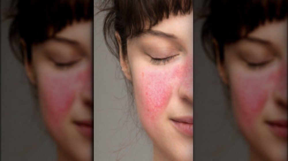 woman with lupus